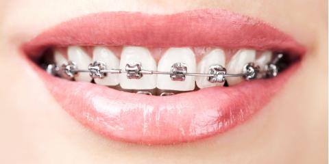 Ask a Dentist: What Foods Should I Avoid While Wearing Braces?, Vanceburg, Kentucky