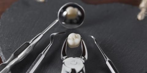 Waipahu Dentist Highlights 5 Details of Wisdom Teeth Removal, Ewa, Hawaii