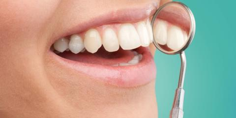 Why Your Dentist Recommends Watching What You Eat After Teeth Whitening, Richmond, Kentucky