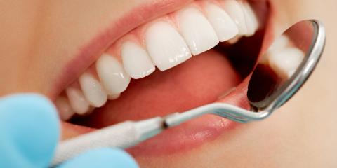 3 Reasons to Schedule Dental Cleanings for Twice a Year, High Point, North Carolina