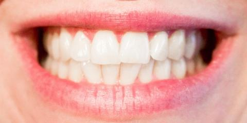 Why You Should Add Fluoride Treatments To Your Dental Care Routine