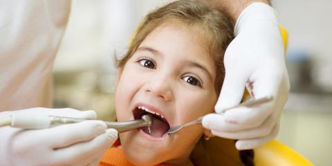Should Dentists Address Cavities in Baby Teeth?, Manchester, Connecticut