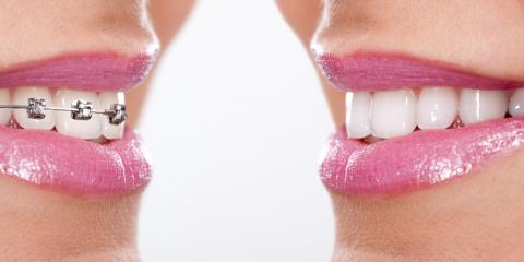 Want a Straight Smile? Ask Your Dentist About Orthodontics Today, Collierville, Tennessee