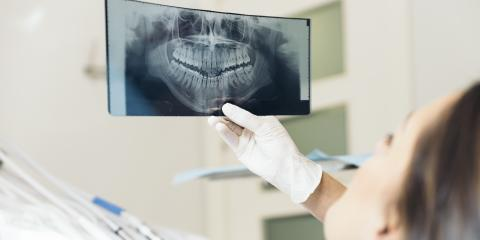 4 FAQ About Periodontal Disease, Manchester, Connecticut