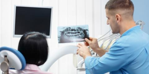 What Are the Options for Dental Fillings?, Enterprise, Alabama