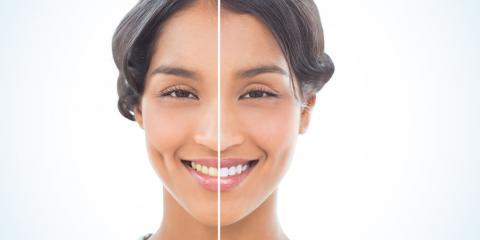 DIY vs. Professional Teeth Whitening, Elyria, Ohio