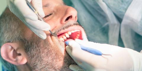 How Fillings Prevent Tooth Decay From Spreading: Richmond's Top Dentist Explains , Richmond, Kentucky
