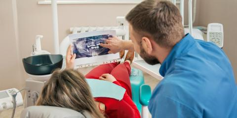 Dental Implant or Bridge? Top Columbia Falls Dentist Weighs In, Columbia Falls, Montana
