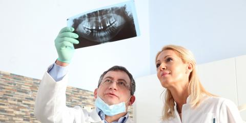 4 FAQ About Root Canals, Mayfield, New York