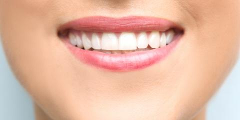3 Reasons to Consider Dental Bonding, Lexington, North Carolina
