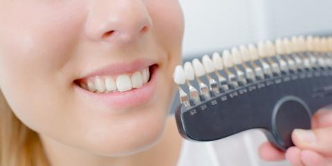 3 Benefits of Same-Day Dentures, O'Fallon, Missouri