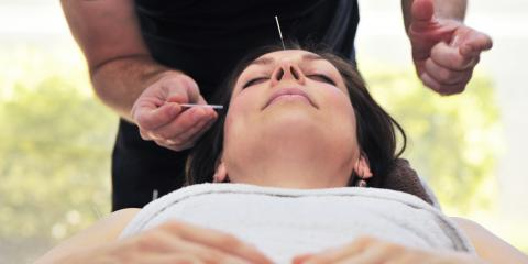 A Guide to Preparing for Acupuncture, Northeast Jefferson, Colorado