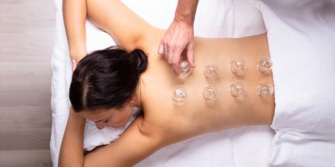 A Basic Guide to Cupping Therapy, Northeast Jefferson, Colorado