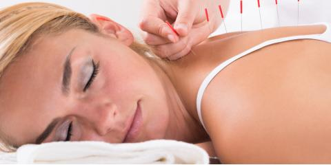 3 Surprising Health Issues Acupuncture Can Help With, Cincinnati, Ohio