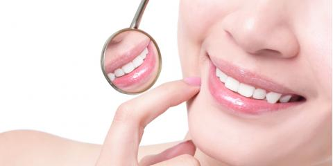A Dentist's Guide to the Sapphire™ Teeth Whitening System, Pagosa Springs, Colorado