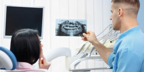 What Are Impacted Wisdom Teeth & Why Should You Have Them Removed?, McCall, Idaho