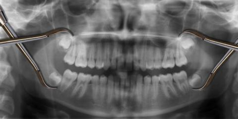 Why You May Require Wisdom Teeth Removal, South Kohala, Hawaii