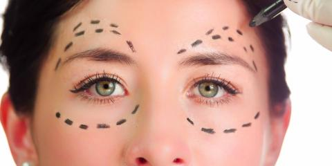 What Is Blepharoplasty? Eyelid Surgery Explained, Ellicott City, Maryland
