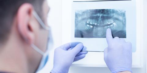 Why You May Need Oral Surgery After Facial Trauma, Anchorage, Alaska
