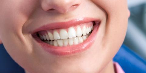 Gum Care Experts on How to Stop Bleeding, Scottsboro, Alabama
