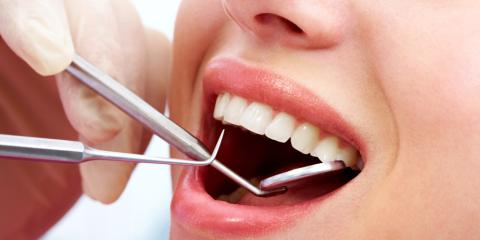 3 Signs You Should Replace Your Dental Filling, Anchorage, Alaska