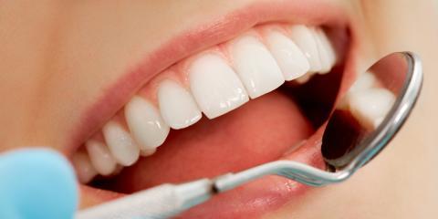 3 Easy Ways to Prevent Gum Disease, Olive Branch, Mississippi