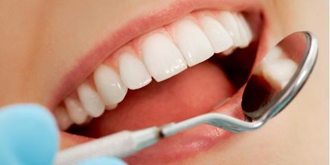 Top 3 Benefits of Teeth Whitening, Lexington, North Carolina