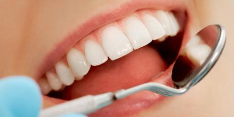 Why Regular Teeth Cleanings Are Important to Dental Care, Ewa, Hawaii