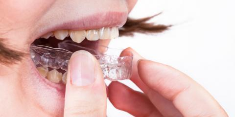 Mouth Guards for Adults: 3 Reasons Your Dentist May Recommend One, Anchorage, Alaska