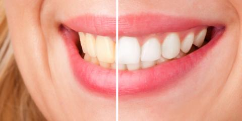 What to Ask Your Dentist About Teeth Whitening & Why, Sacramento, California
