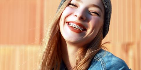 Do You Need Braces From a Family Dentistry Provider? , Springfield, Ohio