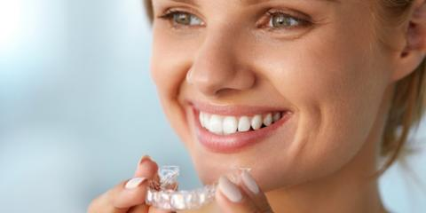 What Is the Difference Between DIY & Professional Teeth Whitening? , Sacramento, California