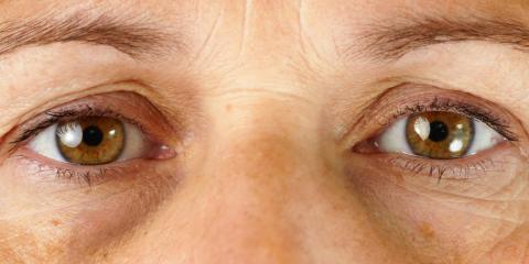 Eye Care: 3 Causes of Dark Under-Eye Circles, Bridgeport, Connecticut