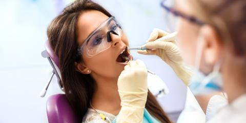 A Guide to Replacing Dental Fillings, Honolulu, Hawaii