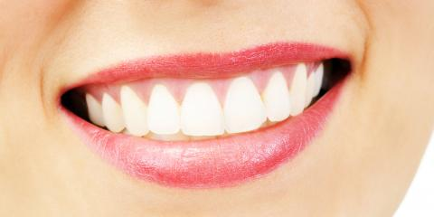 5 Benefits of Professional Teeth Whitening, Canton, Ohio