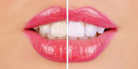 4 Tips for Finding the Right Cosmetic Dentist, Pagosa Springs, Colorado