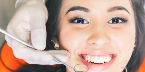 4 Common Misconceptions About Teeth Whitening, Lincoln, Nebraska