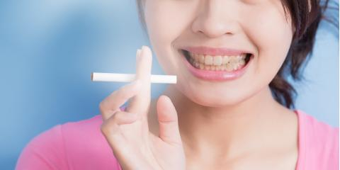 Waipahu's Leading Dentist Explains How Smoking Affects Oral Health, Ewa, Hawaii