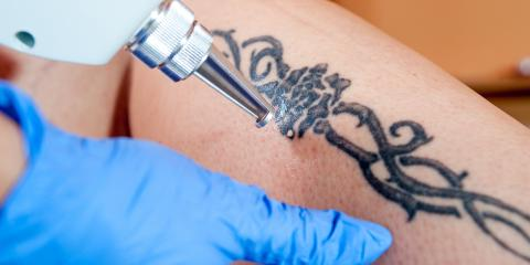 5 Reasons for Laser Tattoo Removal, Manhattan, New York