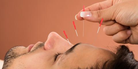 What Are the Health Benefits of Acupuncture?, Streetsboro, Ohio