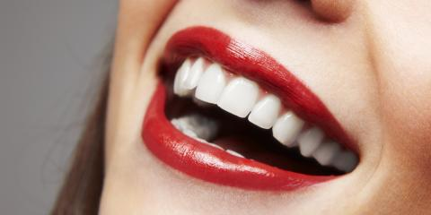 What You Need to Know About Dental Veneers, Somerset, Kentucky