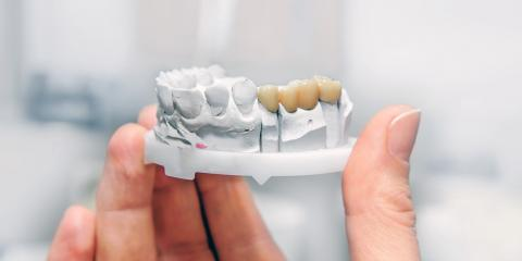 3 Great Tips for Taking Care of Partial Dentures, Stafford Springs, Connecticut