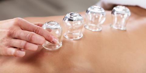 How Cupping Therapy Helps Athletes, Nyack, New York