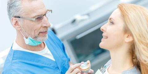 A Guide to Dental Crowns, Rhinelander, Wisconsin