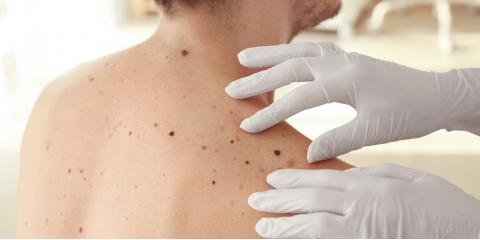 A Guide to Melanomas, Lincoln, Nebraska