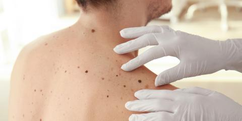 Melanoma Prevention: What to Check For, High Point, North Carolina