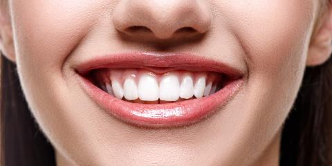 Why Cosmetic Dentistry is a Great Way to Improve Your Appearance, Richmond, Kentucky
