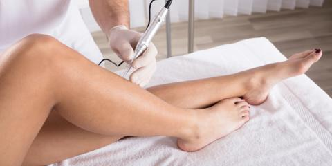 How Long Does Electrolysis Take to Show Results?, Flower Mound, Texas
