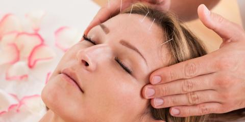 Is Acupuncture a Form of Holistic Healing?, Anchorage, Alaska