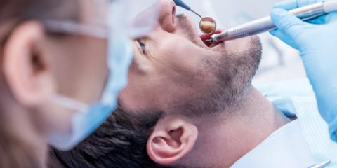 Dentist Explains What You Need to Know About Pericoronitis , Sharonville, Ohio